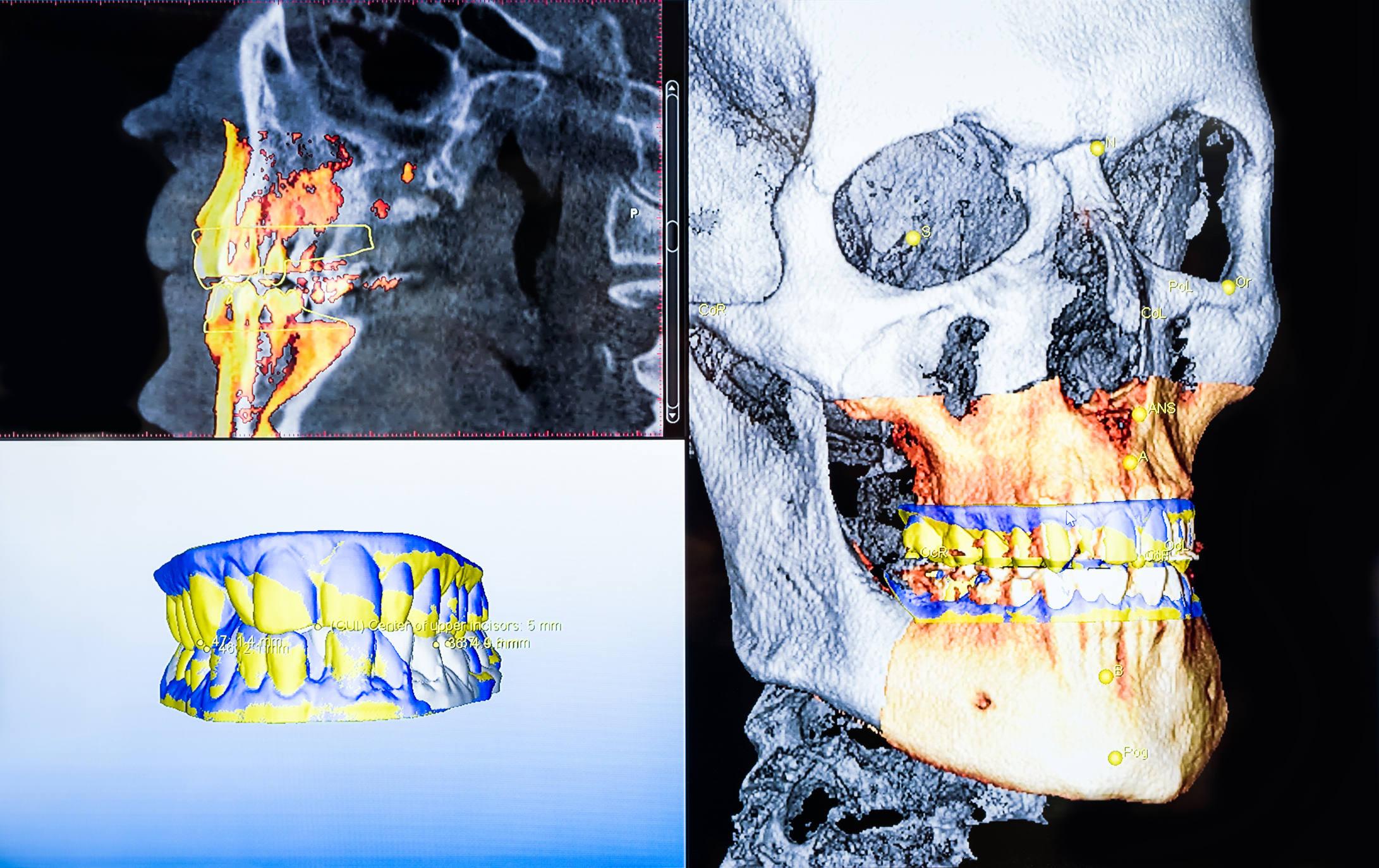3D Röntgen Zahnimplantate Düsseldorf