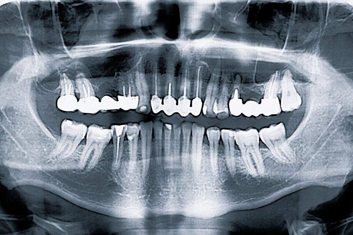 Biologische Zahnmedizin Düsseldorf – toter Zahn